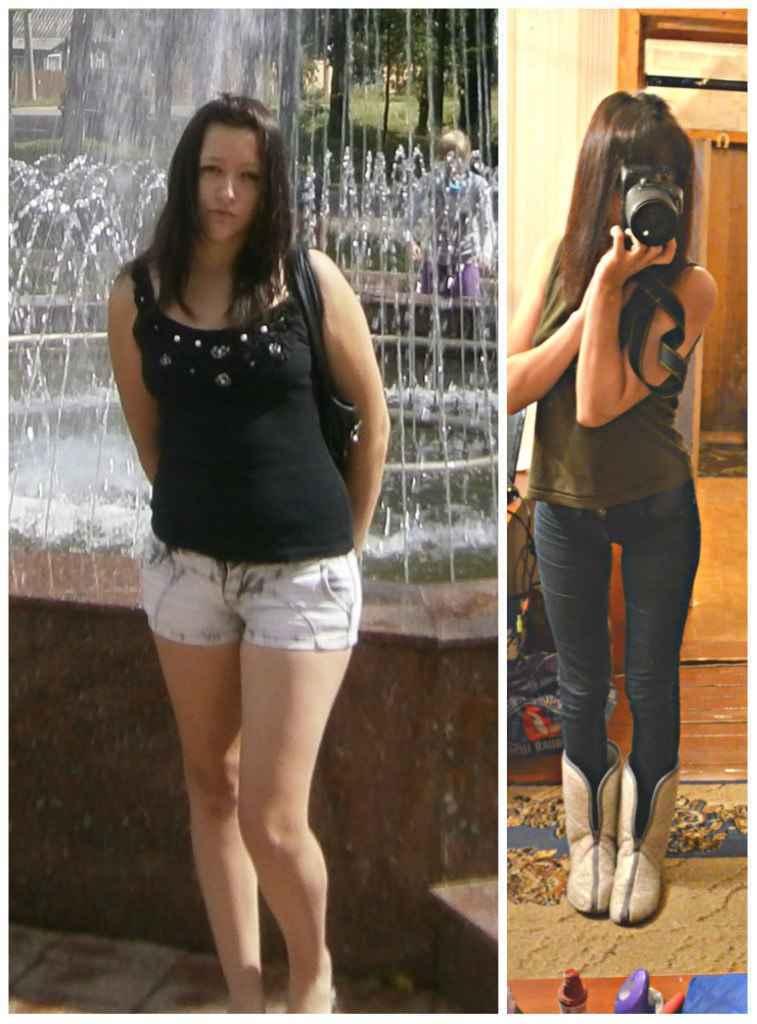 Причины Сильного Похудения Ног. Потеря веса при онкологии: как быстро человек худеет