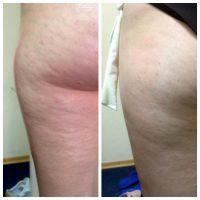 Avant et après le massage