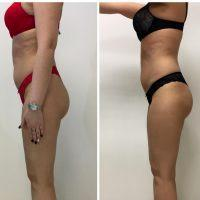 lpg slimming review